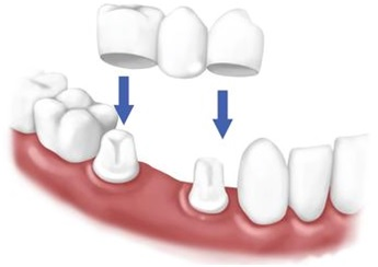 crowns bridges dental