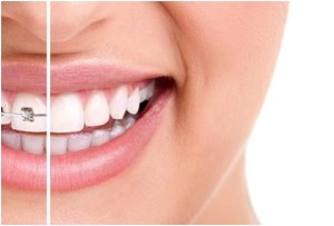 Invisalign for adults and teens in Falls Church