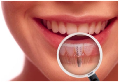 A woman with dental implants in Falls Church, VA