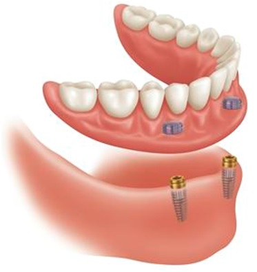 implants full lower denture in Virginia