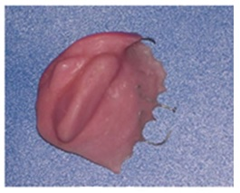 removeable partial denture