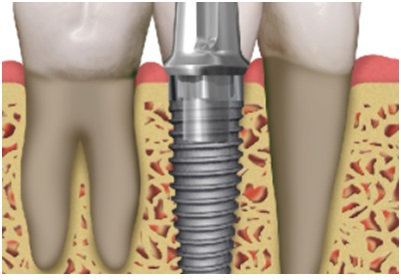 tooth implant root abutment