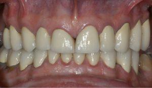 dental reconstruction for grinding