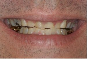 bite problems northern Virginia Prosthodontist