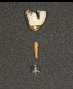 broken implant northern virginia prosthodontist