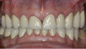 northern virginia prosthodontist