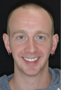 mouth rehabilitation northern Virginia prosthodontist