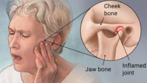 TMJ Problems