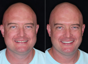 patient smile makeover